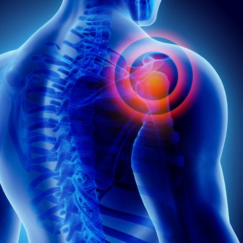 Therapie | Therapie des subakromialen Schmerzsyndroms